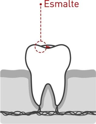 Caries dentales 01