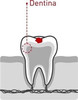 Caries dentales 02