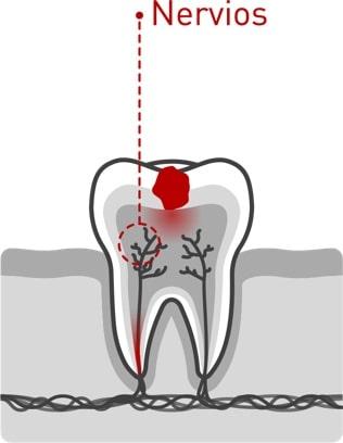 Caries dentales 03