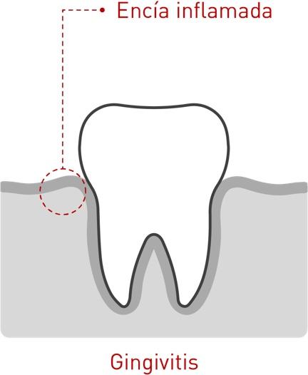 Enfermedad periodontal 01