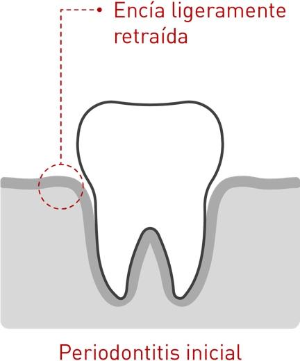 Enfermedad periodontal 02