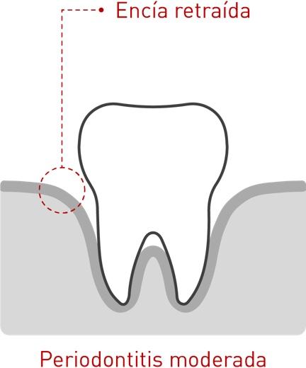 Enfermedad periodontal 03