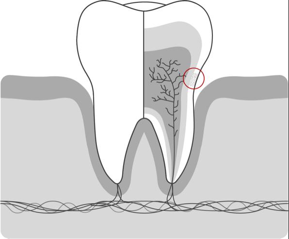 Hipersensibilidad dental 01